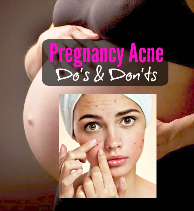 pregnancy acne breakouts pimples treatment food medicine