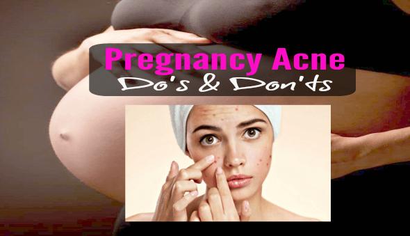 Pregnancy Acne - Do's & Don'ts