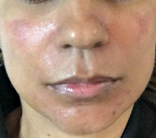 PICO Toning Discovery PICO Melasma Pigmentation Dark Spots Tattoo Removal Prive Aesthetics Singapore Laser Treatment Facial