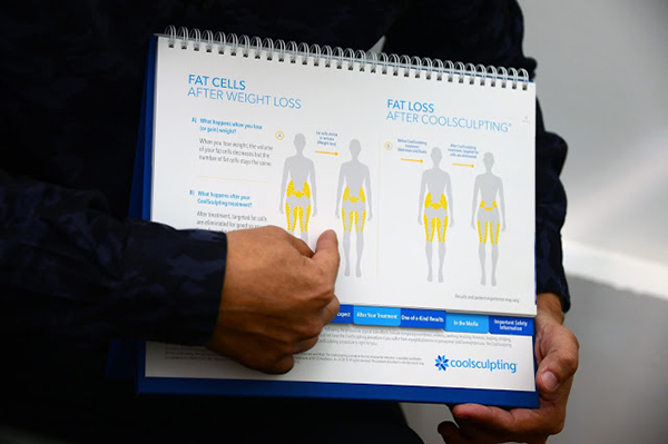 CoolSculpting Review - Does it Really Work on Fat Thighs?