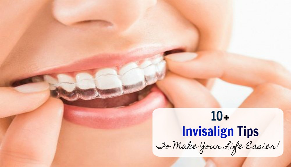 "10+ ""Invisalign"" Tips to Make Your Life Easier!"